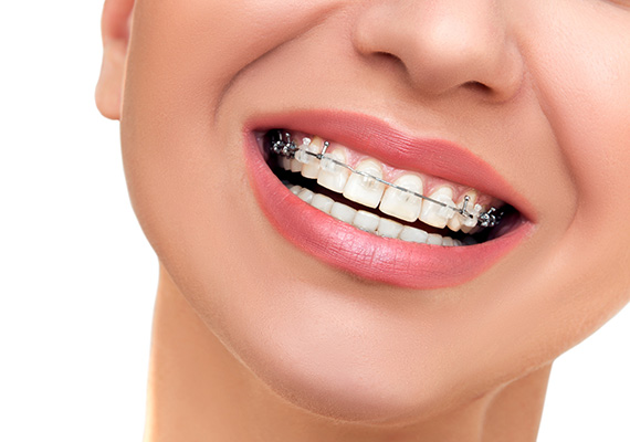 orthodontist in irving tx