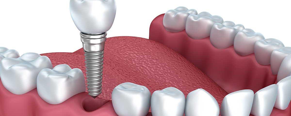 Dental Implants dentist benbrook tx