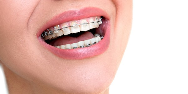 orthodontist Irving TX