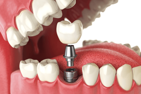 Dental Implants dentist benbrook tx