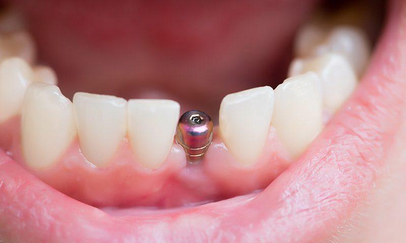 dental implants iriving